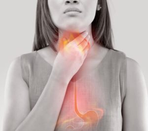Heartburn and acid reflux - how to get rid and remove discomfort and symptoms