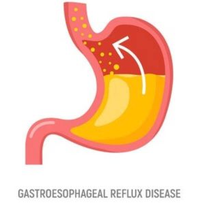 What is acid reflux GERD